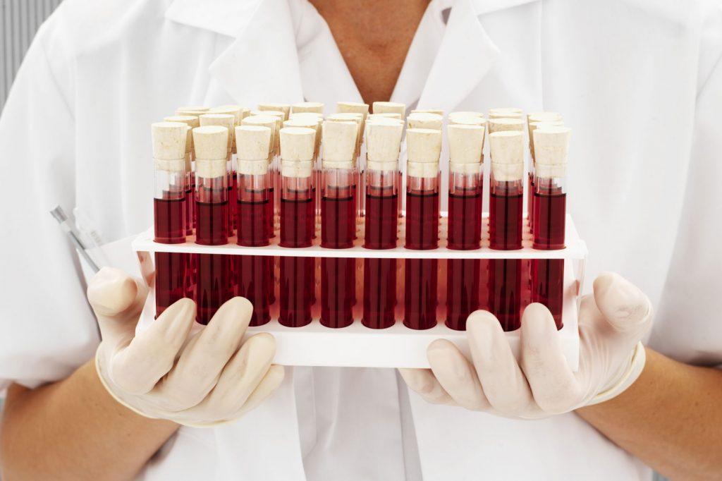 Процентное соотношение групп крови в россии